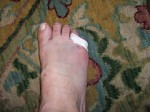 Toe Fracture