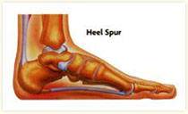 Heel Spur, Foot Orthotics Long Beach