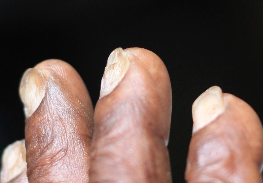 Watch Out for Spoon Toenails