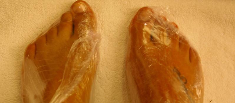 Heal Dry, Scaly Feet
