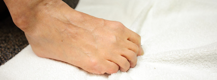 Foot Exercises for Bunions