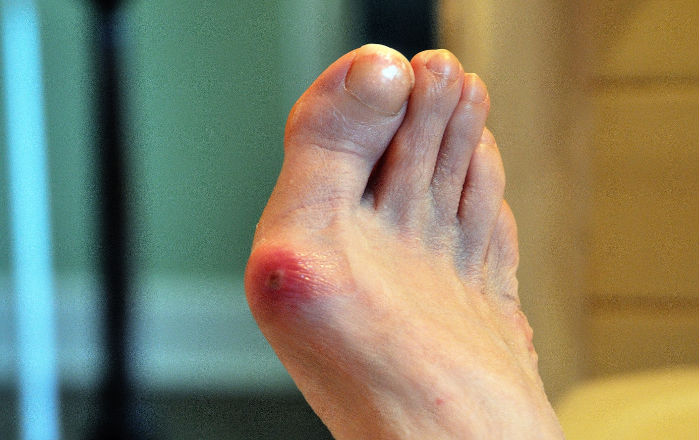 Prevent Bunion Growth
