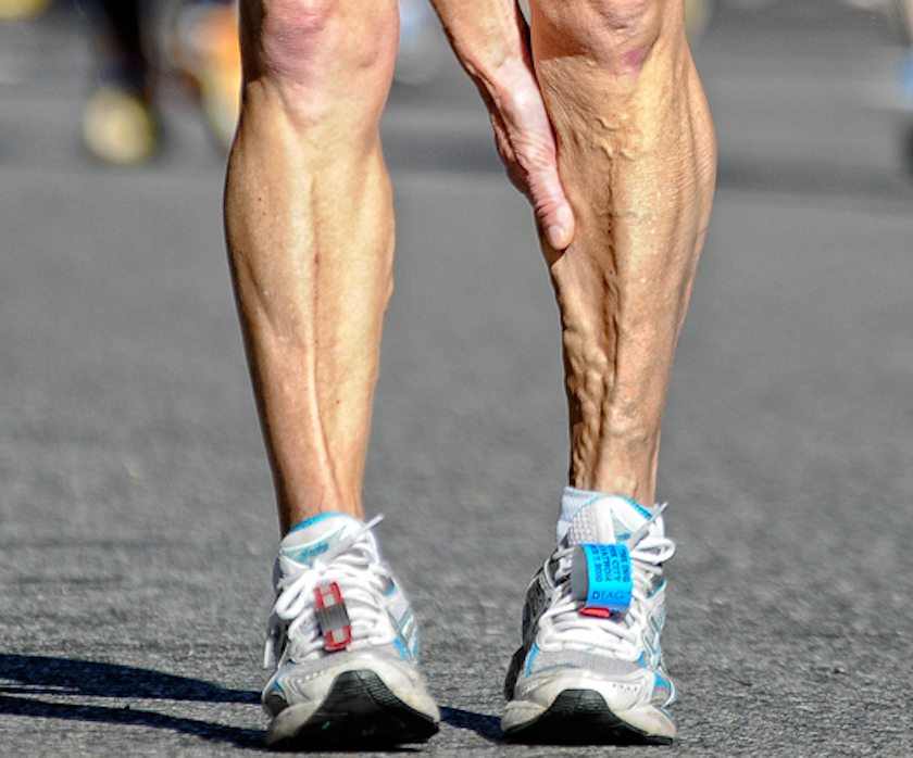 How to Ease a Charley Horse