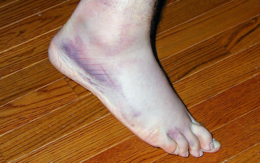 Importance of Balance Training After an Ankle Sprain