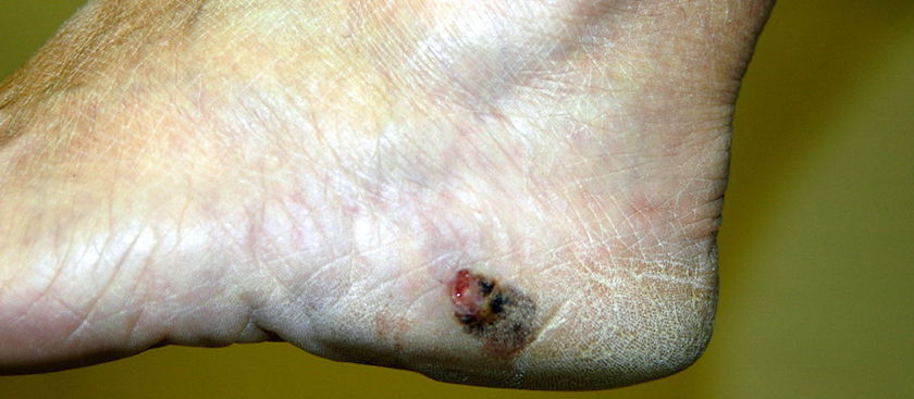 Watch Out for Melanoma on Your Feet