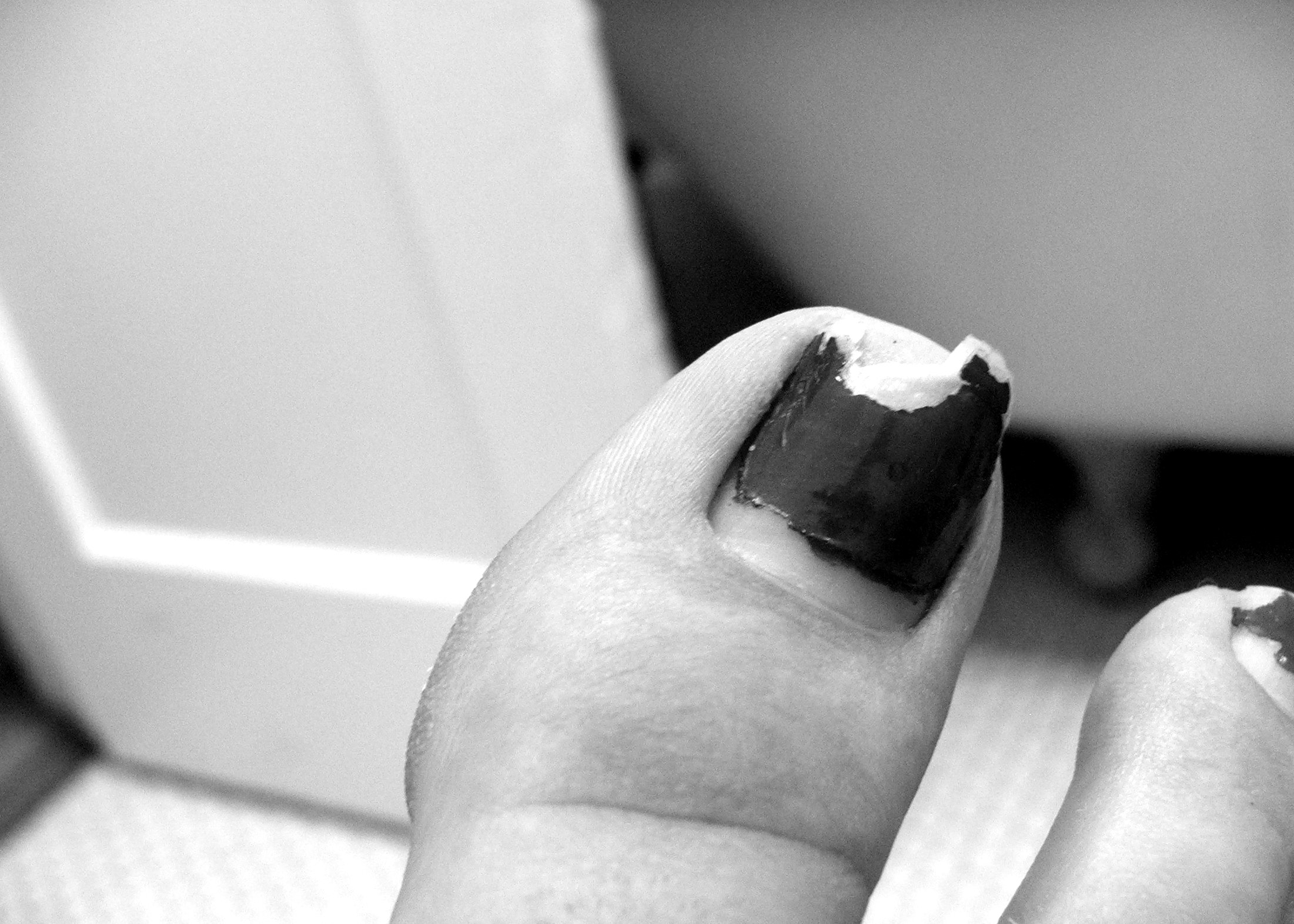 How to Cure a Split Toe Nail