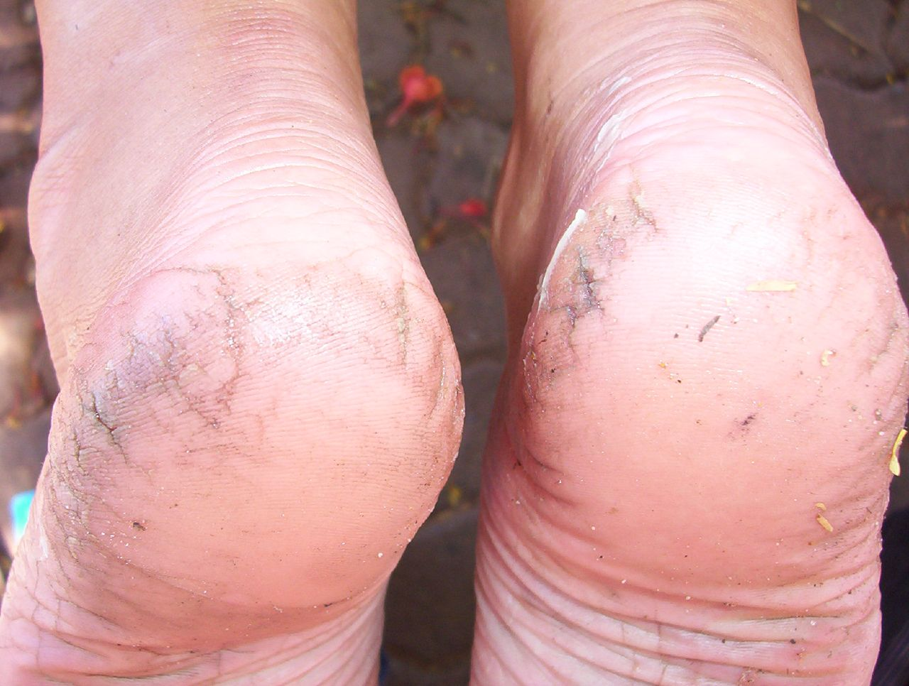 How to Cure Cracked Heels