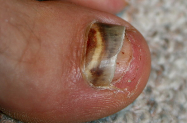 Black Toenails for Runners